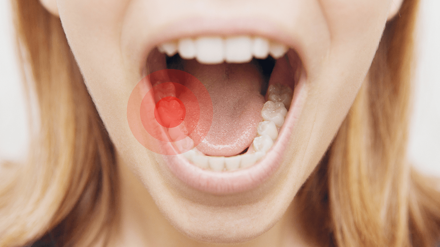 Toothache and Its Impact on Dental Health