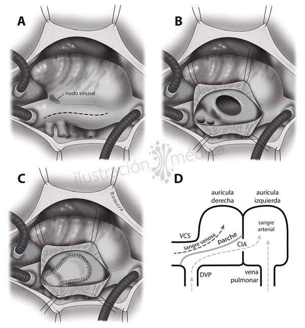 Drenaje venoso pulmonar anómalo. Ilustración de Manuel Romera, ilustracionmedica.es