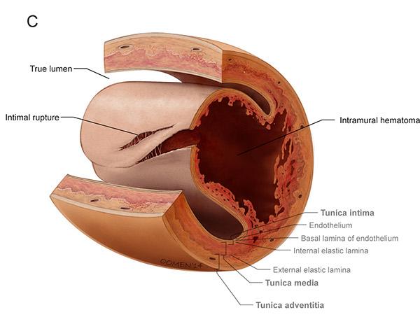 coronary heart disease thesis statement