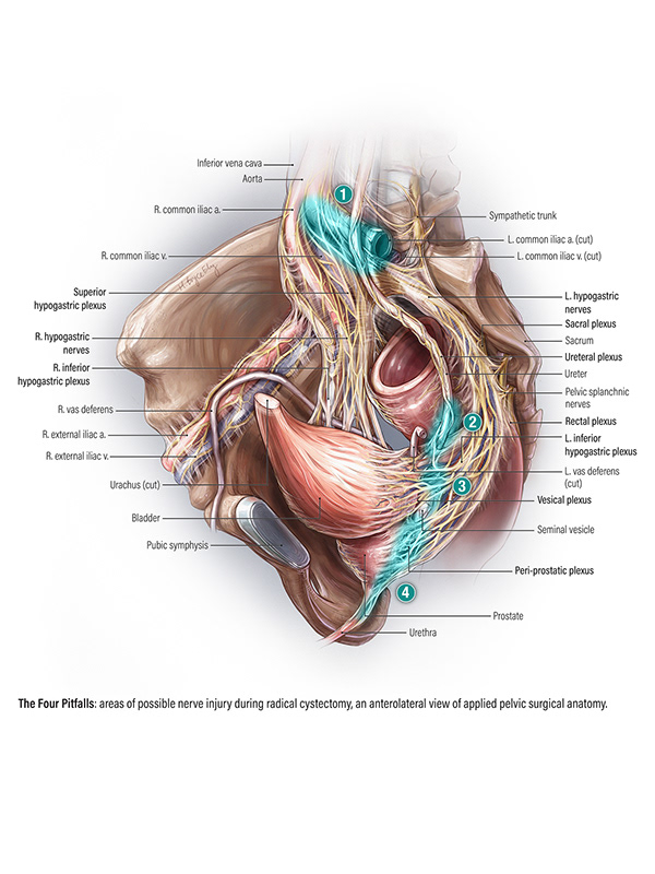 Areas of concern in nerve sparing radical cystectomy