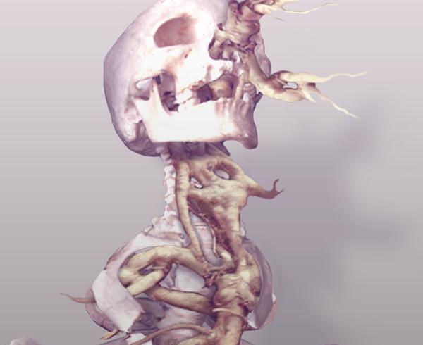dark bones skeleton root roots minimal photomanipulation