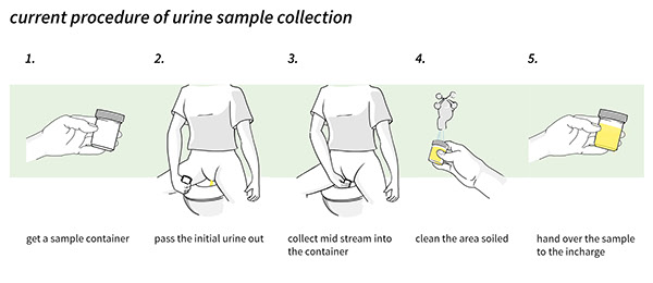 Collect urine sample from catheter.