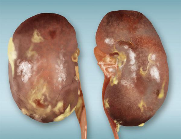 Polycystic Kidney Location