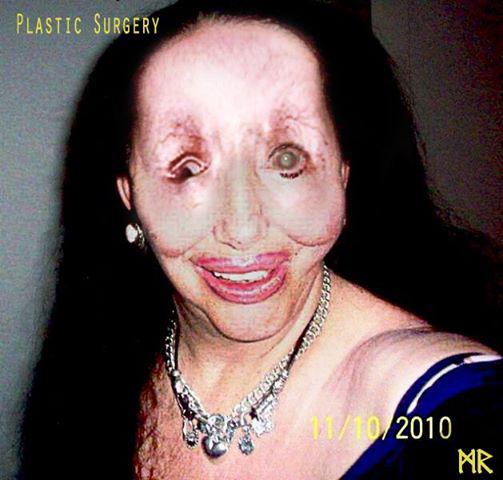 Plastic Surgery Fail On Behance