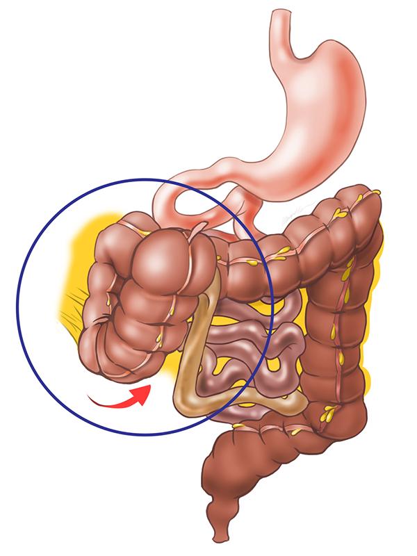 Abnormalities of the Cecum on Behance