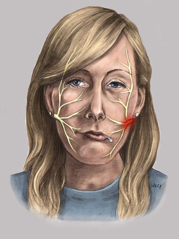 Left facial palsy