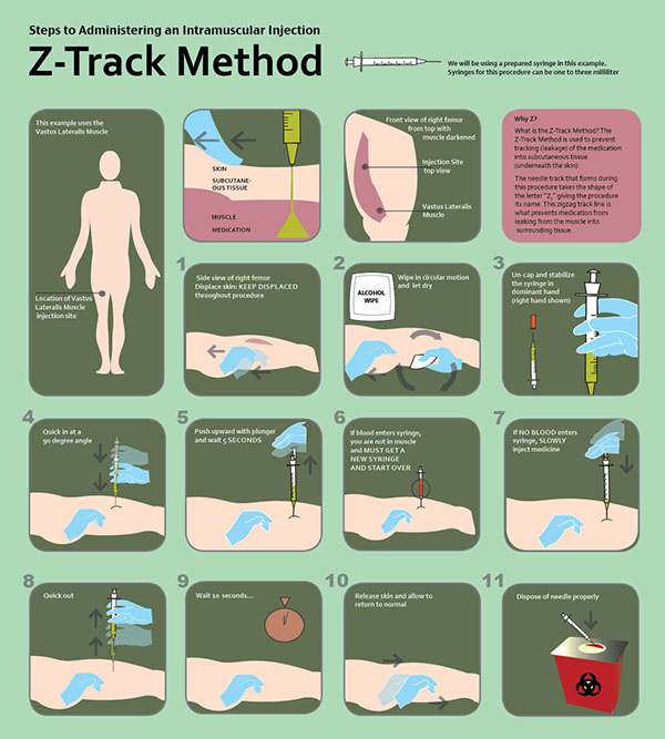 Osf College Of Nursing >> Z-Track Procedure on Behance