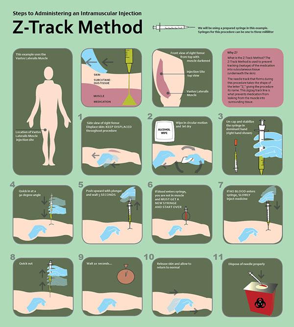 Z-Track Procedure on Behance