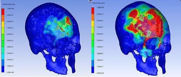Brain injury thesis