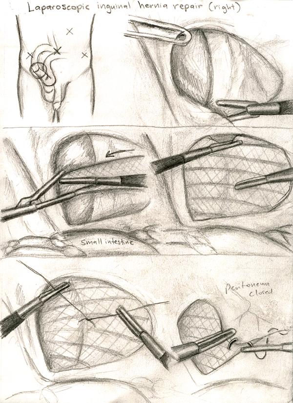 Laparoscopic Inguinal Hernia Repair on RIT Portfolios