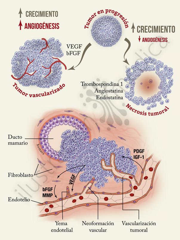 Atlas de cáncer de mama. Ilustración de Manuel Romera, ilustracionmedica.es