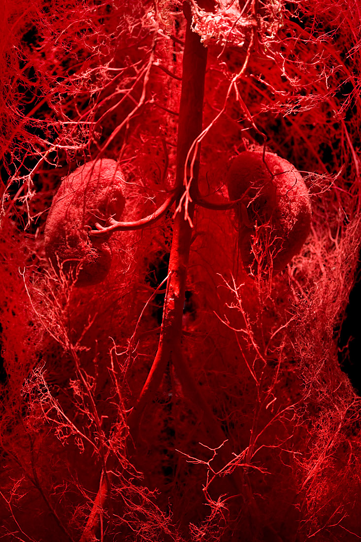 further Blood Vessels as well Body Worlds Vital At The Life Centre furthermore Arthistory Team2 blogspot also Things Atlanta Die. on bodies exhibit circulatory system