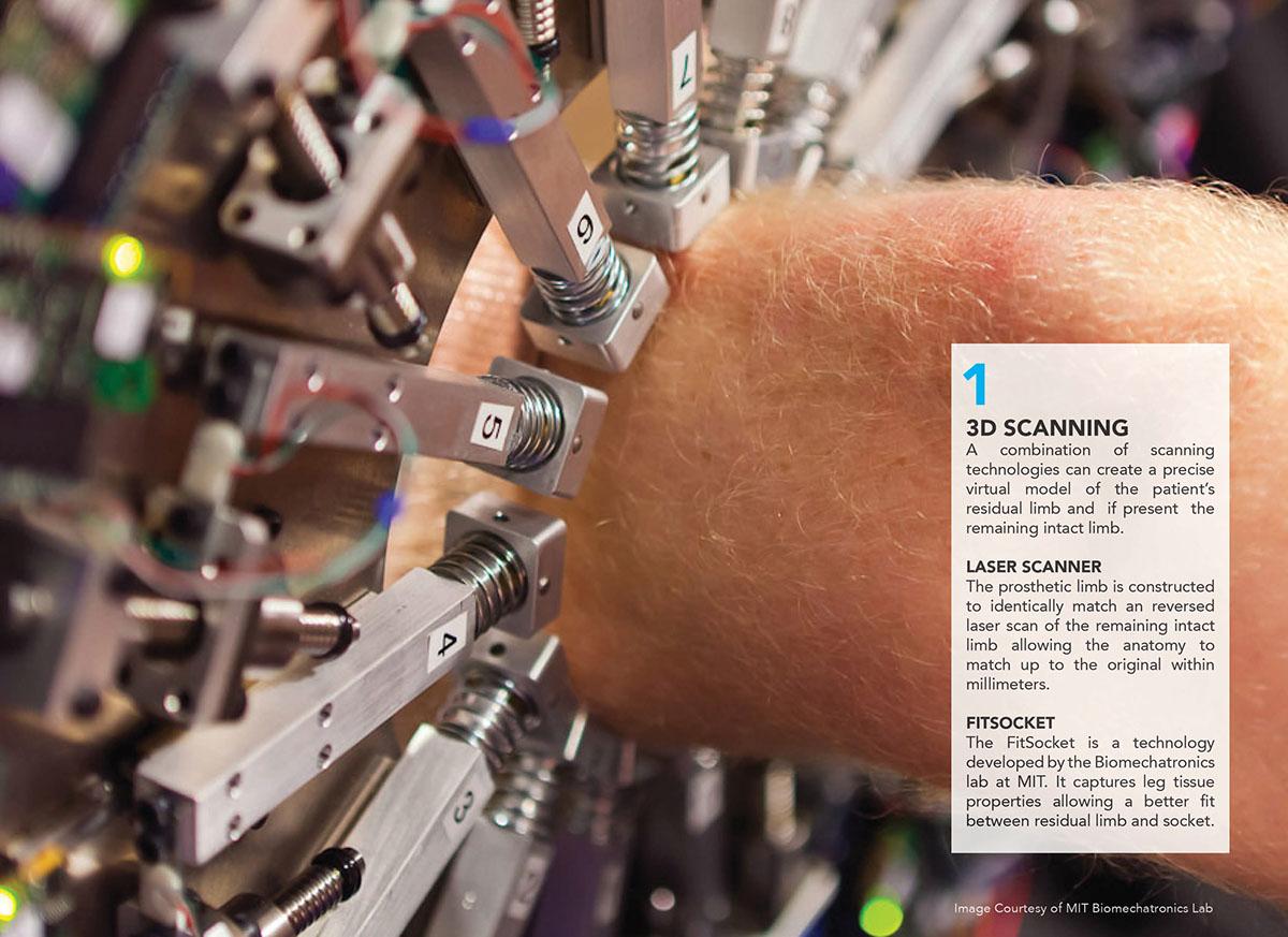 Prosthesis prosthetic leg 3d print exo skeleton Printing
