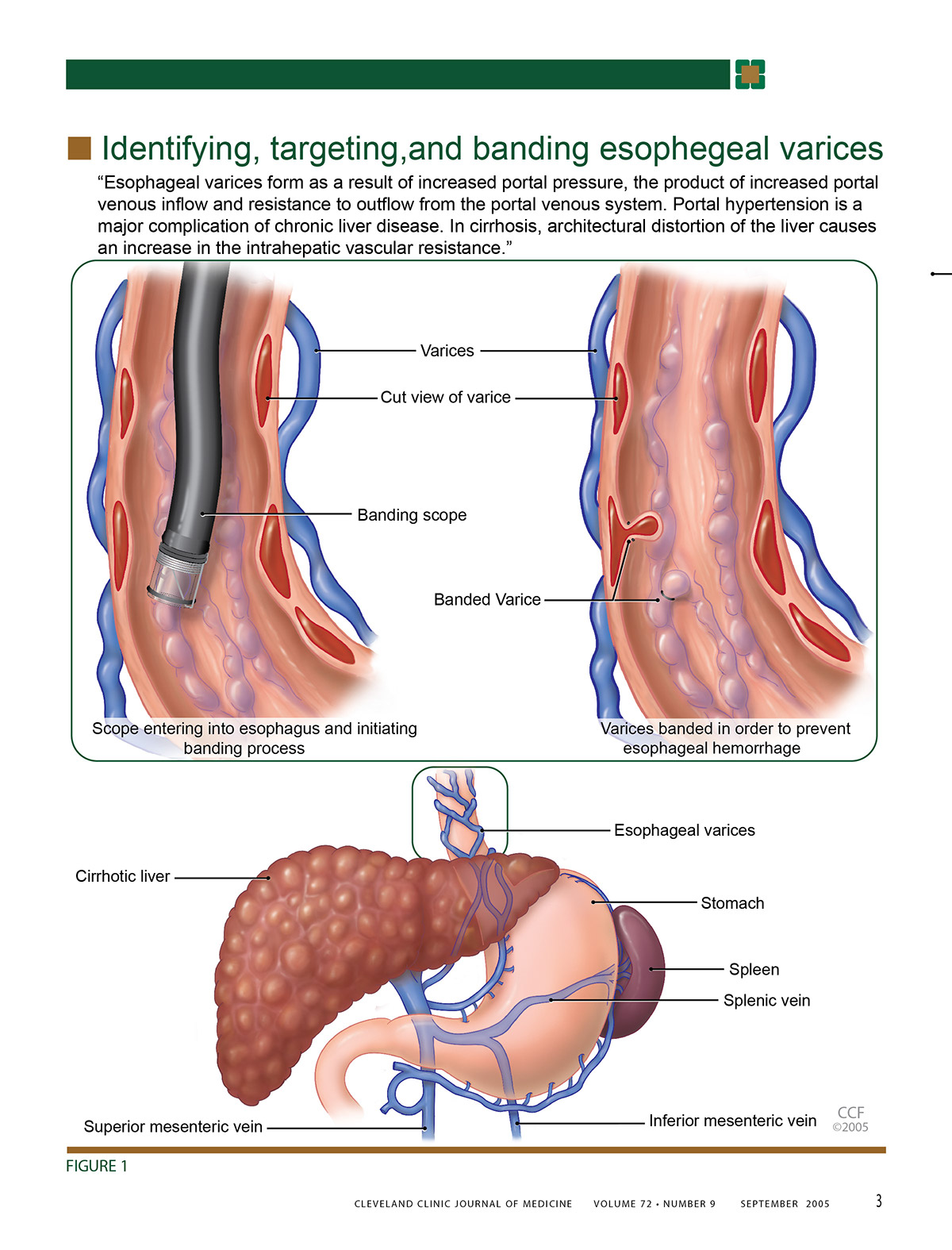 Esophageal Varices on Behance