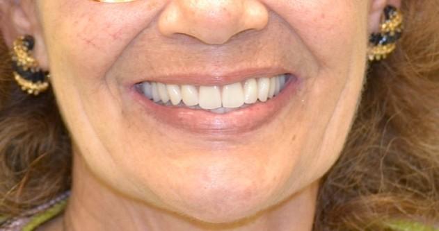 dentures oral health dental care teeth gums