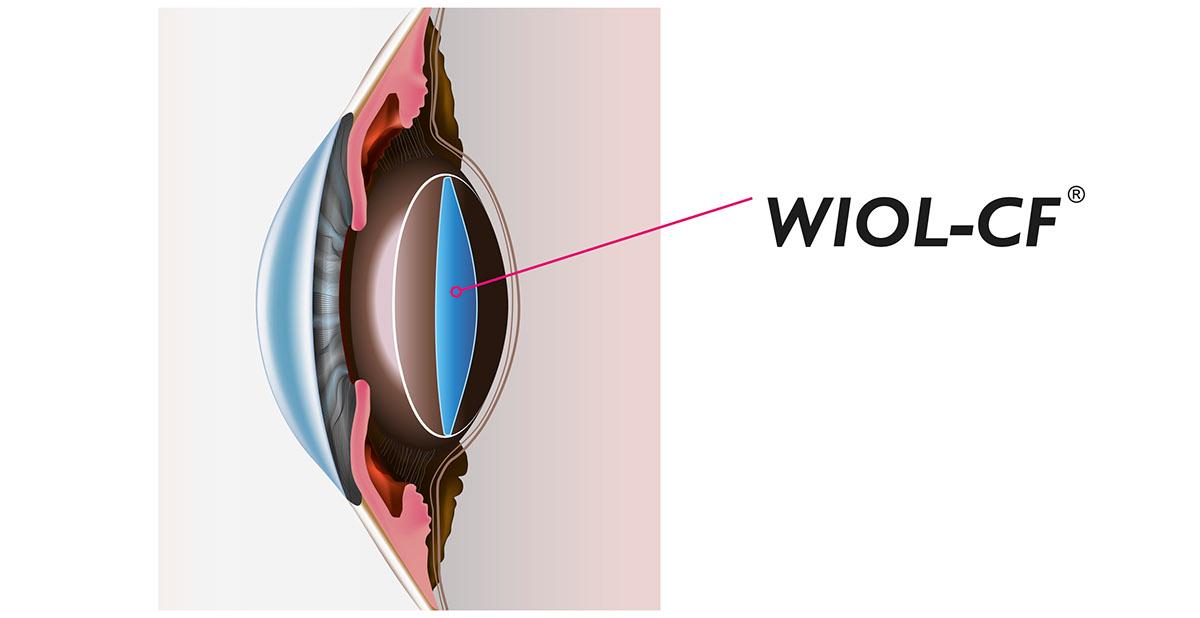 Adobe Portfolio wiol-cf  Medicine  medical lens IOL eye medicem
