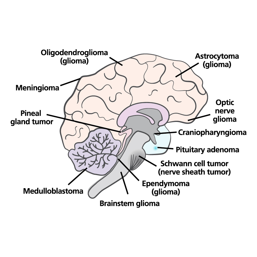 medical illustrations brain illustrations brain ABTA BRAIN TUMOR