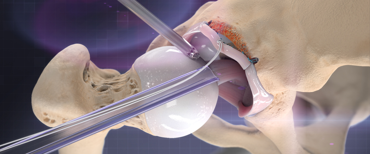 Hip Labral Reconstruction On Behance