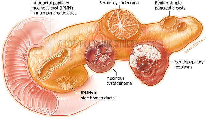 Cysts Of The Pancreas On Behance
