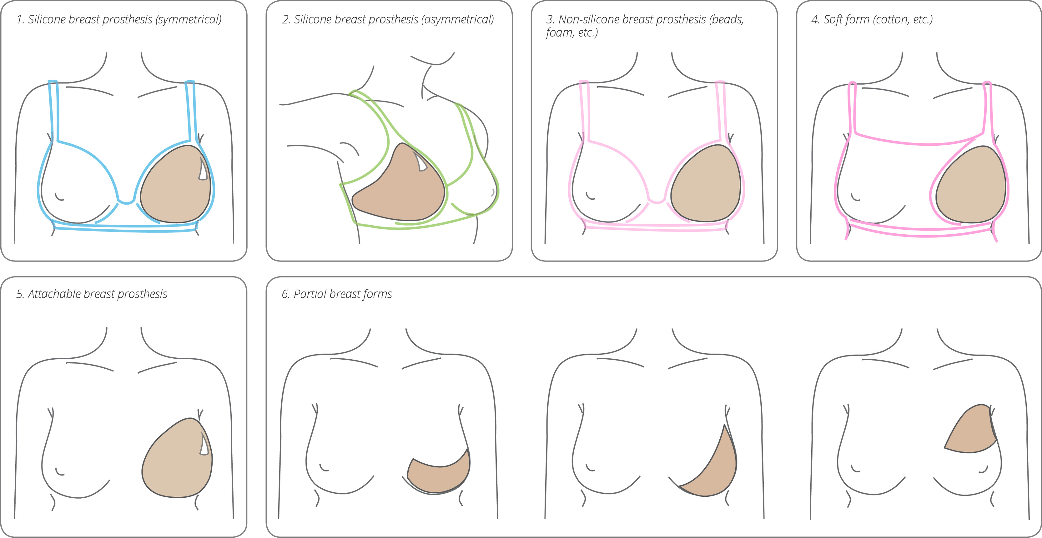 breast prothesis coding Chapter 33: complications of surgery and displaced lens implant admitted for adjustment of breast prosthesis z4430 4.