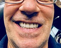 Esteemed Dentist Frank Roach of Atlanta Employs Cerec