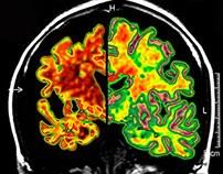 Alzheimer's Postcard