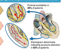 The specialized conduction system of the heart