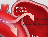 Descending Aortic Dissection Defect Illustration