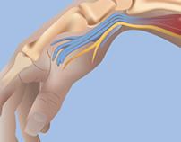 Carpal tunnel medical illustration