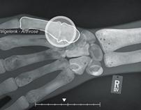 Hand. Arthritis of the Thumb
