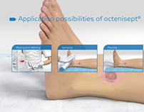 Schülke - Application of octenisept®