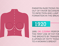 Infographic of History of breast Implantation
