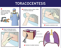 Thoracocentesis