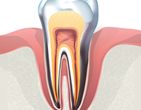Infographic Illustrations for Dental Health