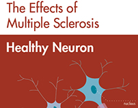 Diagram of the Effects of Multiple Sclerosis on Neurons
