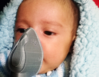 Baby mask - 3D Printers can change or even save lives