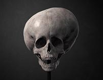 Hydrocephalus Skull Study