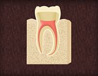Medical Presentation - Root Canal