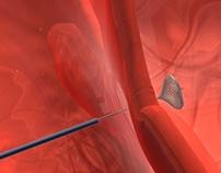 Atrial septal animation