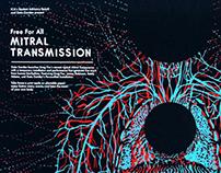 Mitral Transmission at ICA