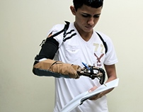 OpenSocket Prosthetic Arm - A Photographic Journey