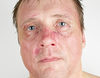 Amateur Boxers - After a Fight