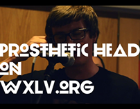 Prosthetic Head on WXLV.org