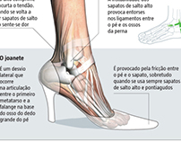 Fashion injuries
