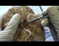Brain Carotid MCA-ACA Circulation-Stroke-Sanjoy Sanyal