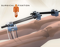 Surgical Fixation