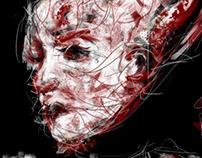 Headache/Exploding Head Syndrome (animation)