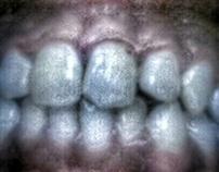 Teeth Bared
