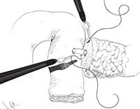 Surgical Illustration