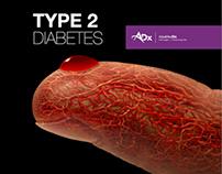 Project Management - AdvaMedDx, Type 2 Diabetes